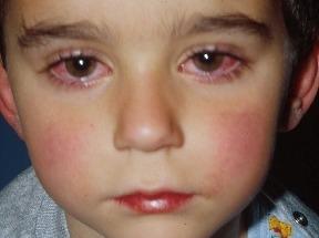 유아 결막염